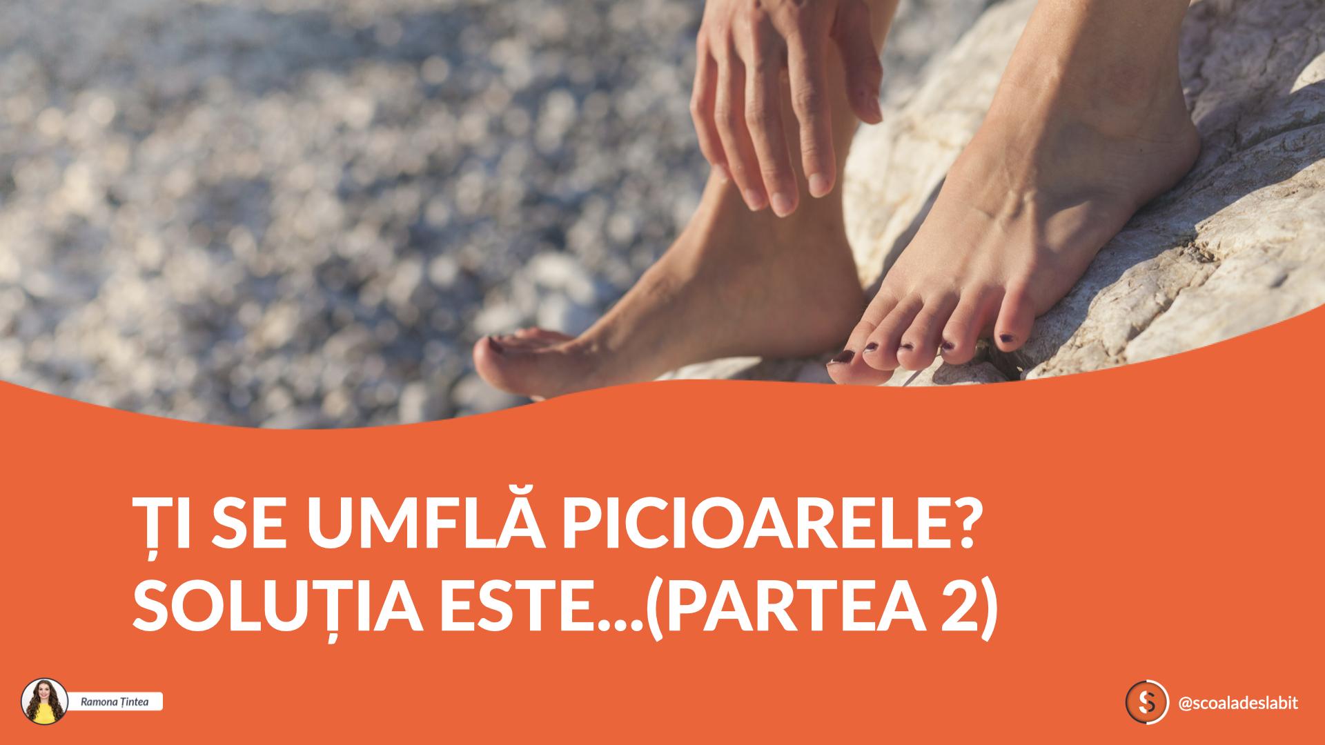 Ți Se Umflă Picioarele? Soluția Este…(Partea 2)